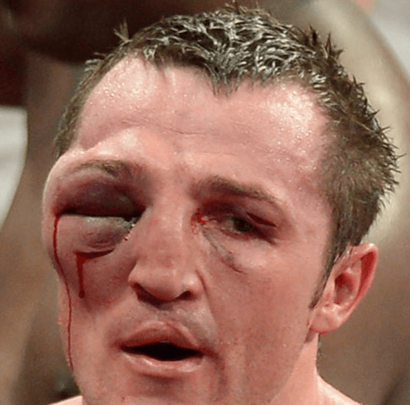 Eye and Face Lebedev Denis Boxer